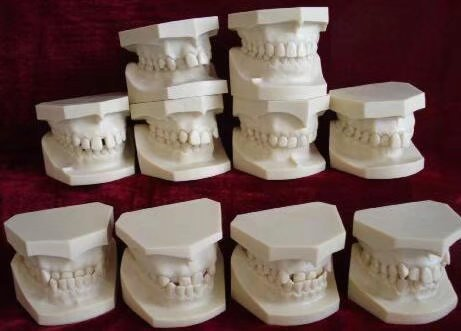 S&D Dental Teaching Demonstration Model Dentition Developing Model Ortho Classification Ortho Classification Monochrome Single Color 10pcs/set by SDent