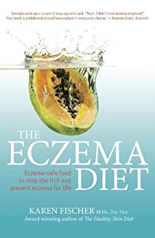 The Eczema Diet: Eczema-safe food to stop the itch and prevent eczema for life by [Fischer, Karen]