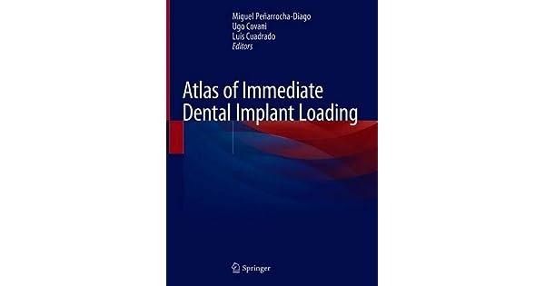 Amazon.com: Atlas of Immediate Dental Implant Loading ...