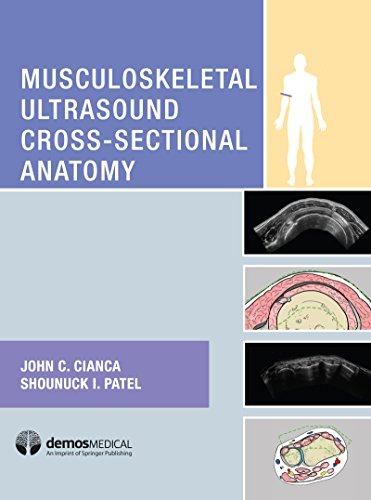 Musculoskeletal Ultrasound Cross-Sectional Anatomy