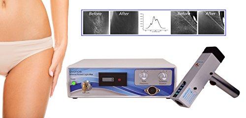 Mquina profissional de eletrlise de laser IPL para cabelo permanente no laser, tatuagem, veia, mancha de idade, remoo de cicatrizes
