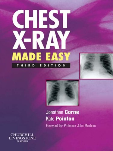chest x ray made easy e book kindle 感想 jonathan corne kate