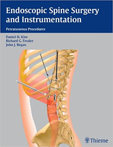 Endoscopic Spine Surgery and Instrumentation - Kindle