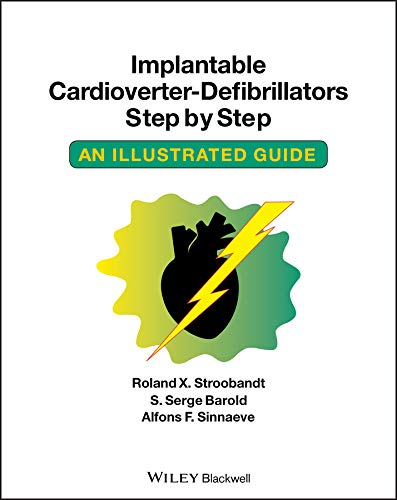 Implantable Cardioverter - Defibrillators Step by Step: An Illustrated Guide