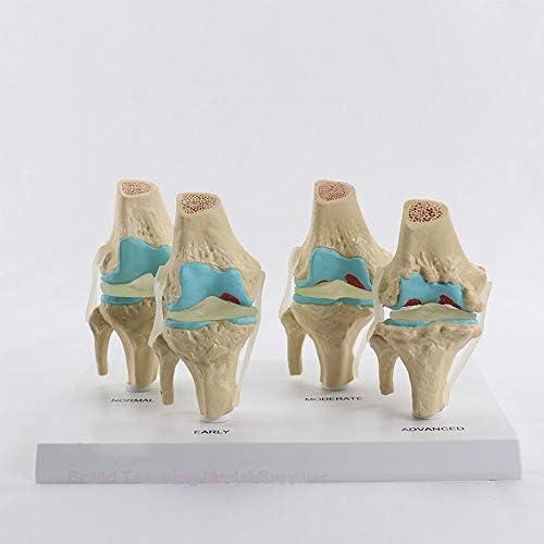 四分型ひざ関節 正常な膝と骨の疾患の複合モデル スケルトンモデル医療教育トレーニング 医学教育骨格モデルの学習人体模型骨格標本 骨格模型 骨模型 標本