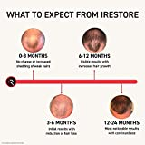 iRestore Professional Laser Hair Growth System
