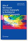 Atlas of Non-Invasive Coronary Angiography by Multidetector Computed Tomography (Developments in Cardiovascular Medicine)