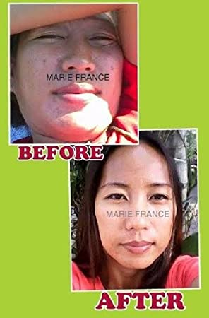 Amazon.com: Marie Francia tono Perfeccionar Toner – kojic y ...