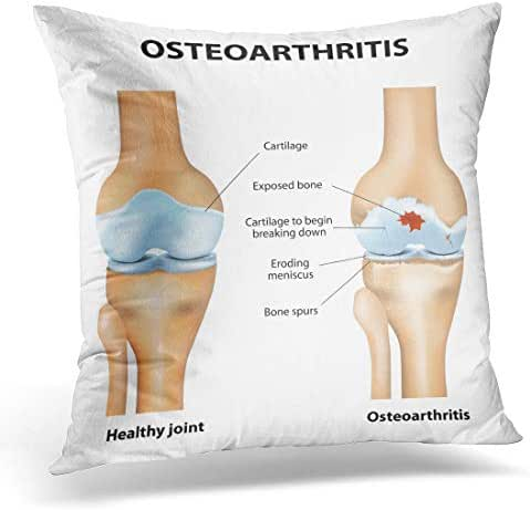 Emvency Throw Pillow Cover Osteoarthritis Arthritis Pain Within Joint Degenerative Disease Cartilage Becomes Decorative Pillow Case Home Decor Square 18
