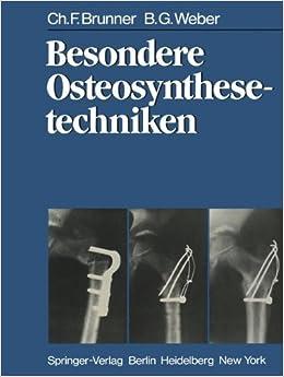 Book Besondere Osteosynthesetechniken