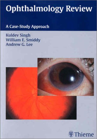 Ophthalmology Review: A Case Study Approach Kuldev Singh