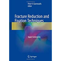 Fracture Reduction and Fixation Techniques: Upper Extremities