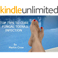 TOP TIPS TO CURE FUNGAL TOENAIL INFECTION: How to: The Treatment and Cure of Toe Nail and Fingernail Fungus and Athlete's Foot
