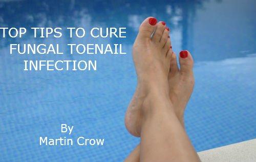 Fungal Nail Disease Treatment