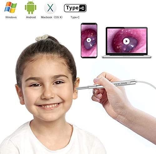 Ultra Slim Otoscope Teslong Diameter Veterinary product image