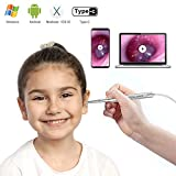 Best Digital Cameras For Children - Ultra-Slim Digital Otoscope, Teslong New Upgrade 4.3mm Diameter Review