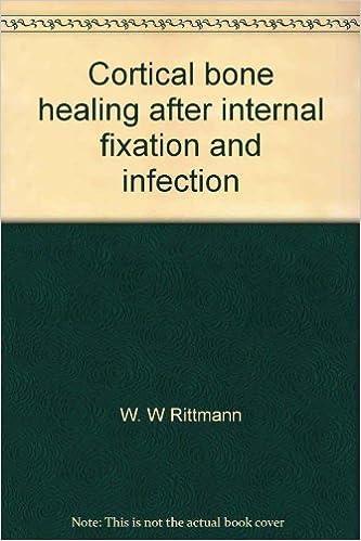 Libros de descarga de libros electrónicos gratisCortical bone healing after internal fixation and infection;: Biomechanics and biology PDF FB2 iBook by W. W Rittmann