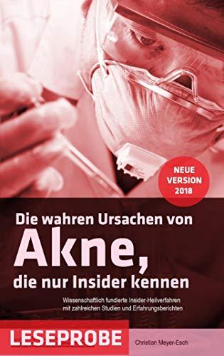 Die wahren Ursachen von Akne, die nur Insider kennen (Leseprobe) (German Edition)