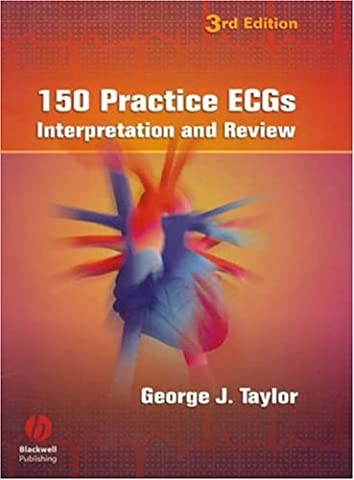 150 Practice ECGs: Interpretation and Review (The Ecg In Practice)