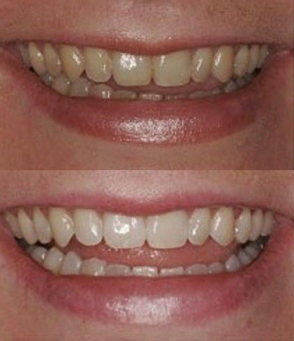 ProDental Professional Teeth Whitening Kit - Made in USA - Faster Results Than Tooth Whitening Strips, Pen, Powders and Toothpaste. Safe for Sensitive Teeth. Includes Gel and Trays for 24 Treatments by ProDental (Image #2)