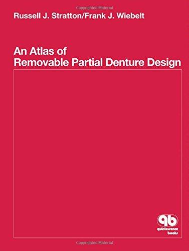 Atlas of Removable Partial Denture Design