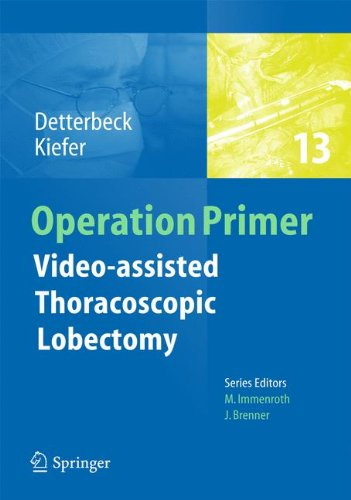 Video - assisted Thoracoscopic Lobectomy - Assisted Operations Shopping Results
