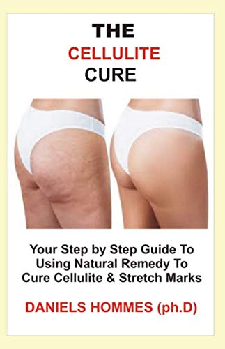 THE CELLULITE CURE: Step by Step Guide into Using Natural Remedy To Eliminate Cellulite & Erase Stretch Mark