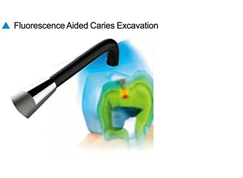 Amazon.com: AIYO Coxo-Chunter Family Self-Check Light for Bad Tooth Detector: Health & Personal Care