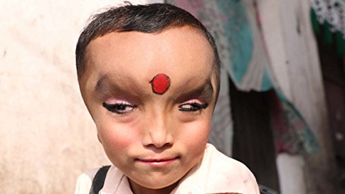 Boy With Mystery Condition Is Worshipped As A God ()
