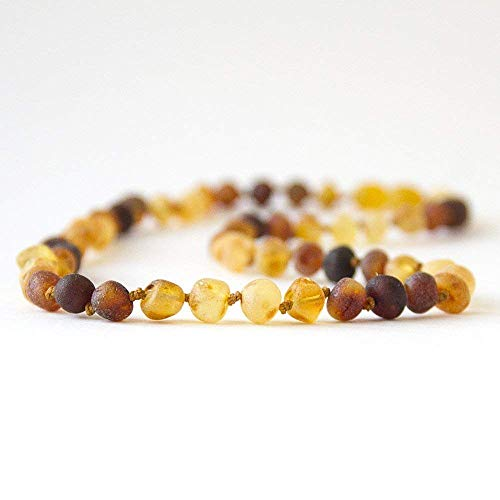 Hippie Hoopla Raw Baltic Amber Anklet/Bracelet 7