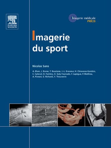 Imagerie du sport (French Edition) Pdf