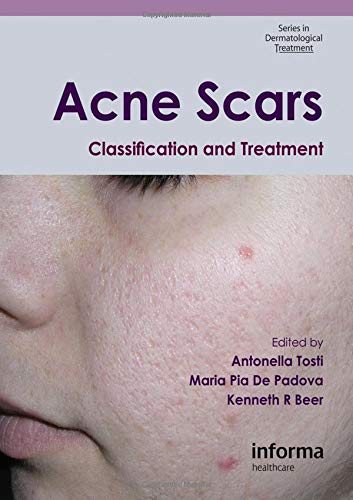 Acne Scars: Classification and Treatment (Series in Dermatological Treatment) (Rated Acne Scar Removal Top)