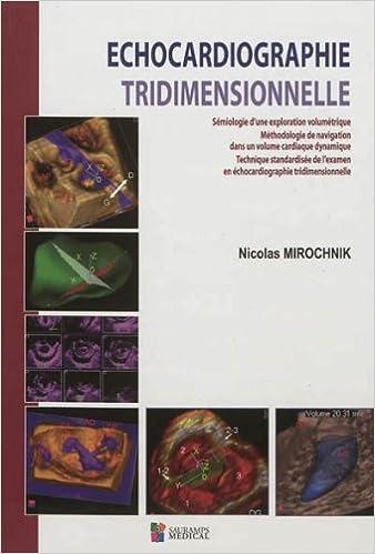 Lire Echocardiographie tridimensionnelle epub, pdf