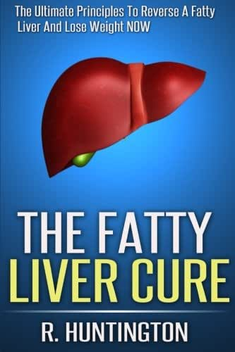 The Fatty Liver Cure: The Ultimate Principles To Reverse And Cure Fatty Liver  And Lose Weight NOW ! (Volume 1)