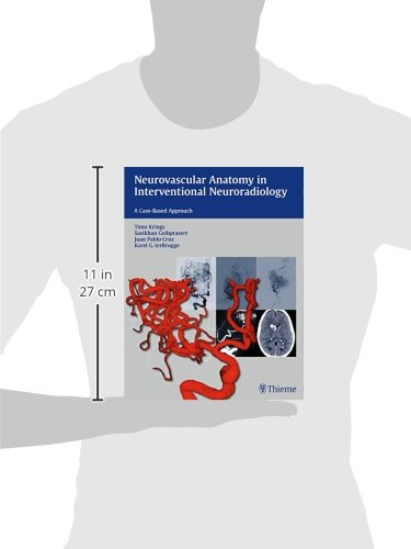 Neurovascular Anatomy in Interventional Neuroradiology: A Case-Based Approach