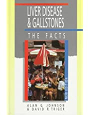 Liver Disease and Gallstones