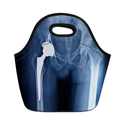 Semtomn Neoprene Lunch Tote Bag X Ray Scan of Hip Joints Orthopedic Replacement Total Reusable Cooler Bags Insulated Thermal Picnic Handbag for Travel,School,Outdoors,Work