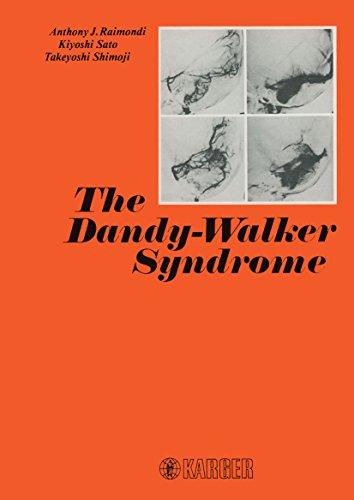The Dandy-Walker Syndrome - Dandy Walker