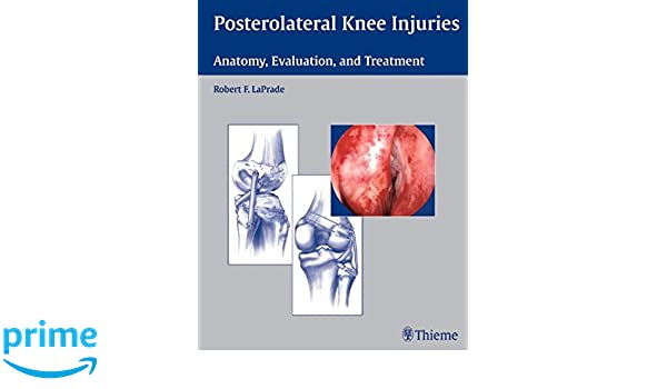 Posterolateral Knee Injuries Anatomy Evaluation And Treatment