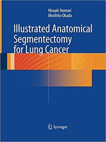 Illustrated Anatomical Segmentectomy For Lung Cancer por None epub