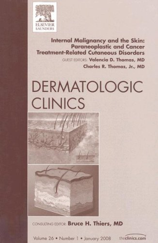 Internal Malignancy And The Skin  Paraneoplastic And Cancer Treatment Related Cutaneous Disorders  Paraneoplastic And Cancer Treatment Related ... Clinics  The Clinics  Dermatology