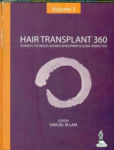 Hair Transplant 360: Advances, Techniques, Business Development, and Global Perspectives