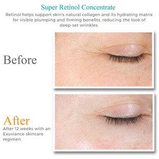 exuviance retinol review