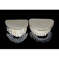 Custom Teeth Whitening Trays Full Kit w/Gel Direct from Our Dental Lab, Professional Upper and Lower Bleaching Trays, Buy Direct and Save. Whiter Smile Labs