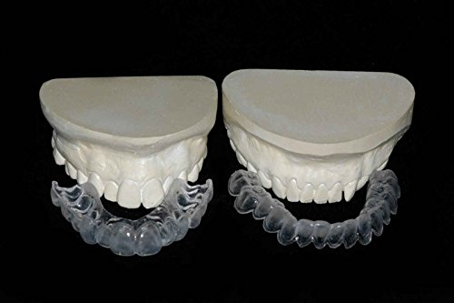 Bypass Tray (Custom Teeth Whitening Trays Full Kit w/ Gel Direct From Our Dental Lab, Professional Upper and Lower Bleaching Trays, Buy Direct And Save. Whiter Smile Labs)