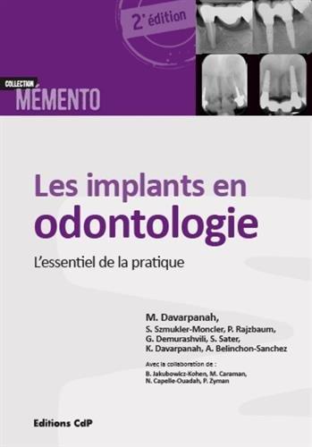 Les implants en odontologie: L'essentiel de la pratique. Broché – 1 octobre 2015 A. Belinchon-Sanchez K Davarpanah Sarah Sater G Demurashvili
