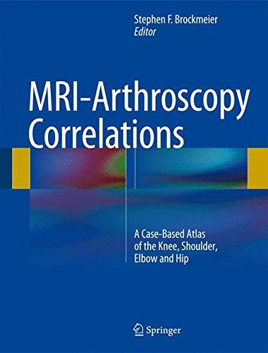 MRI-Arthroscopy Correlations: A Case-Based Atlas of the Knee, Shoulder, Elbow and Hip