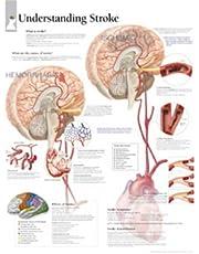 Understanding Stroke Laminated Poster