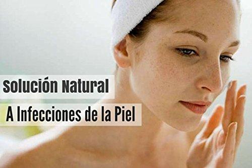 Amazon.com: Aromati-Algas – Aceite corporal perfumado en Spray para la PSORIASIS, ECZEMAS Y DERMATITIS - Suaviza e Hidrata todo tipo de Piel (1.01oz): ...