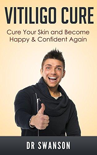Fast Vitiligo Cure Ebook